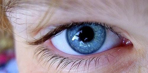 Augenmigräne flickr (c) Ali Smiles CC-Lizenz